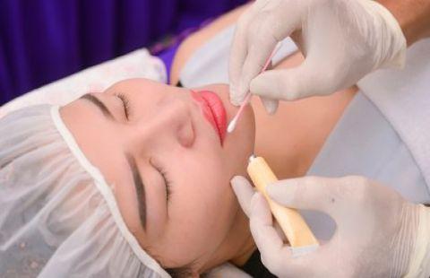 Quy trình ủ tê môi đúng cách